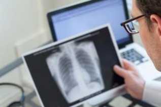 Dinkes Bantul Temukan Ratusan Penderita TB