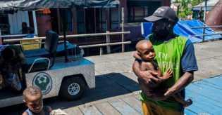 Campak dan Gizi Buruk di Asmat, Diskes Papua Tempatkan 10 Tenaga Medis Selama Setahun